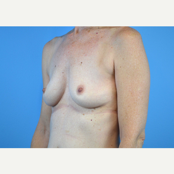 45-54 year old woman treated with Breast Implants before 3440059