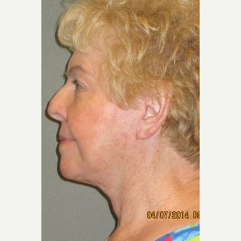 65-74 year old woman treated with Lower Face Lift after 2087766