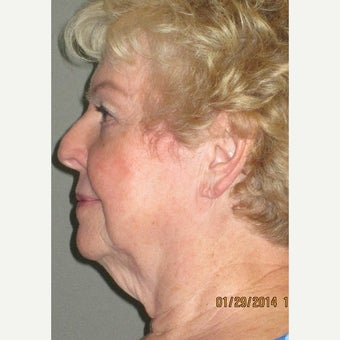 65-74 year old woman treated with Lower Face Lift before 2087766
