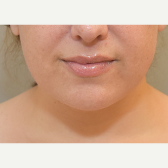 36 year old woman treated with Chin Liposuction after 3725641
