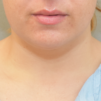 36 year old woman treated with Chin Liposuction before 3725641