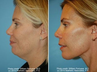 Neck Liposuction before 212290