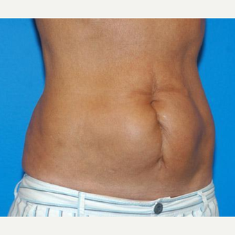 Tummy Tuck before 3241379