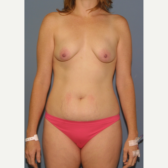 25-34 year old woman treated with Breast Lift with Implants before 3454676