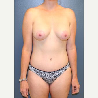 25-34 year old woman treated with Breast Lift with Implants after 3454676