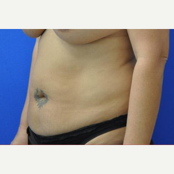 Tummy Tuck before 3208561