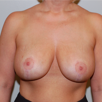 35-44 year old woman treated with Breast Lift after 3129294