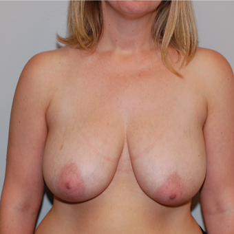 35-44 year old woman treated with Breast Lift before 3129294