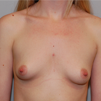 25-34 year old woman treated with Breast Augmentation before 3425727
