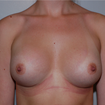 25-34 year old woman treated with Breast Augmentation after 3425727