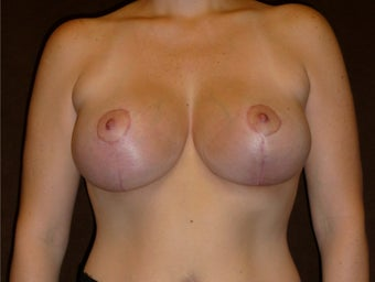 33 Year Old Female Who Underwent Breast Lift and Implant after 945246