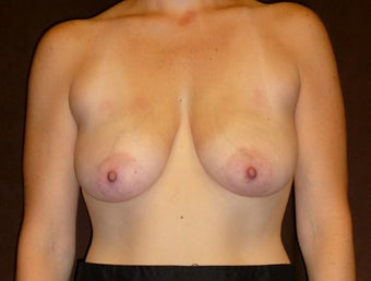 33 Year Old Female Who Underwent Breast Lift and Implant before 945246
