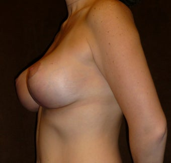 33 Year Old Female Who Underwent Breast Lift and Implant 945246