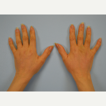 Hand Rejuvenation - Fat Transfer to Hands after 3465794