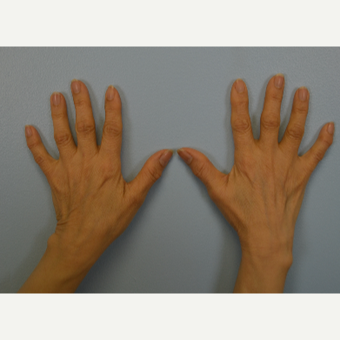 Hand Rejuvenation - Fat Transfer to Hands before 3465794