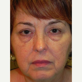 55-64 year old woman treated with Laser Resurfacing before 1947516