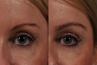 Eyebrow Hair Transplant before 575284
