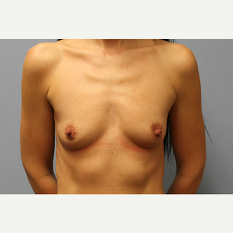 35-44 year old woman treated with Breast Augmentation before 3569974