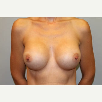 35-44 year old woman treated with Breast Augmentation after 3569974