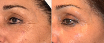Ultherapy skin tightening of the upper face before 1032289