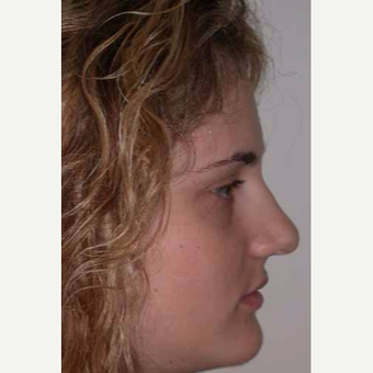 25-34 year old woman treated with Rhinoplasty before 3499796