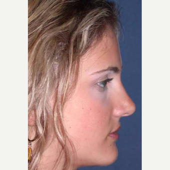 25-34 year old woman treated with Rhinoplasty after 3499796