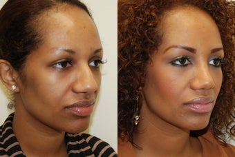 African Rhinoplasty Surgery. 1 month post-op. before 754368