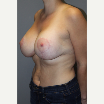 25-34 year old woman treated with Breast Lift with Implants after 3129116