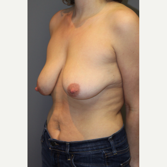 25-34 year old woman treated with Breast Lift with Implants before 3129116