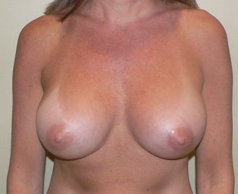 Breast Augmenation after 943702