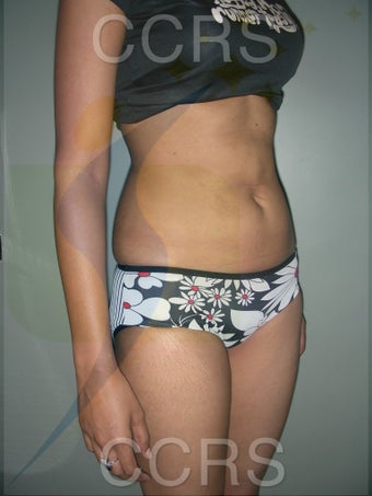 VASER lipo - 25 yrs old model (abdomen & flanks)