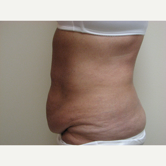 Tummy Tuck before 3301365