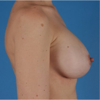 25-34 year old woman treated with Breast Augmentation after 3844192