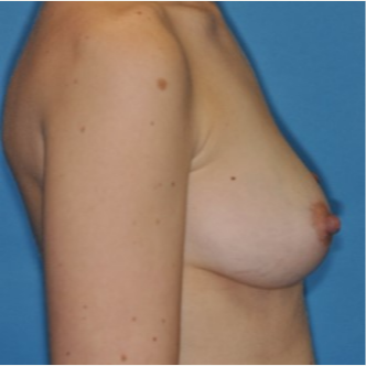 25-34 year old woman treated with Breast Augmentation before 3844192