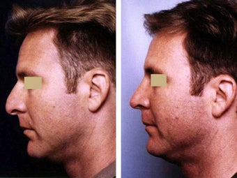 Rhinoplasty before 109659