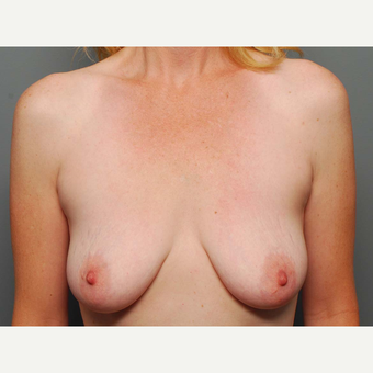 43 y/o Dual Plane Crescent Breast Augmentation before 3065946