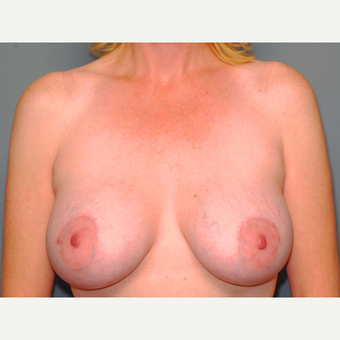 43 y/o Dual Plane Crescent Breast Augmentation after 3065946