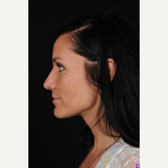 18-24 year old woman treated with Rhinoplasty after 1550956