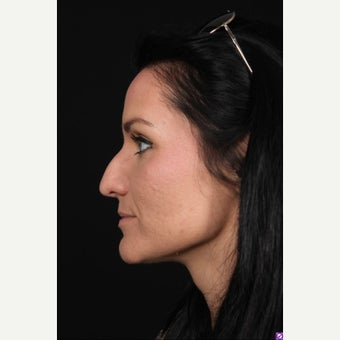 18-24 year old woman treated with Rhinoplasty before 1550956