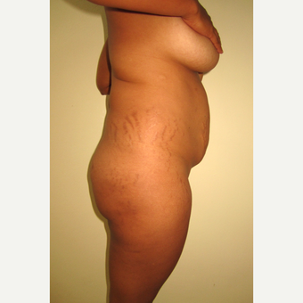 25-34 year old woman treated with Tummy Tuck before 3804648