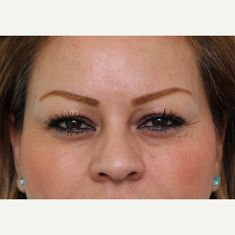 Glabellar Botox after 3490613