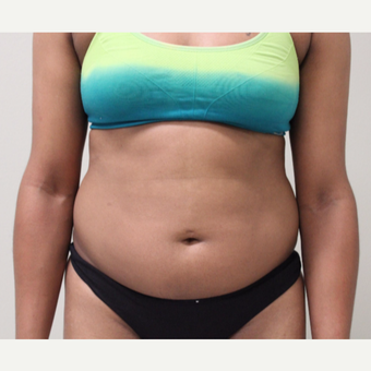 25-34 year old woman treated with Liposuction before 3445897