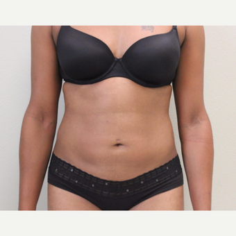 25-34 year old woman treated with Liposuction after 3445897