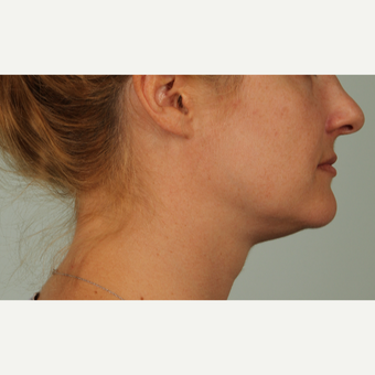 32 year old woman treated with Kybella before 3305332