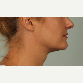 32 year old woman treated with Kybella after 3305332