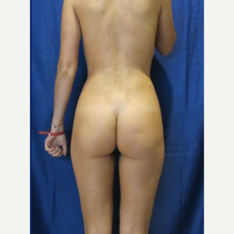25-34 year old woman treated with Butt Implants before 3481407