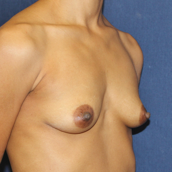 Breast Augmentation with Rapid Recovery before 3814408