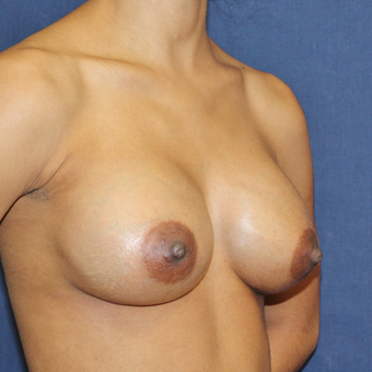 Breast Augmentation with Rapid Recovery after 3814408