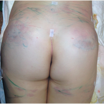 25-34 year old woman treated with Butt Augmentation after 3020254