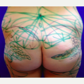 25-34 year old woman treated with Butt Augmentation before 3020254
